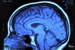 cerveaux.jpg